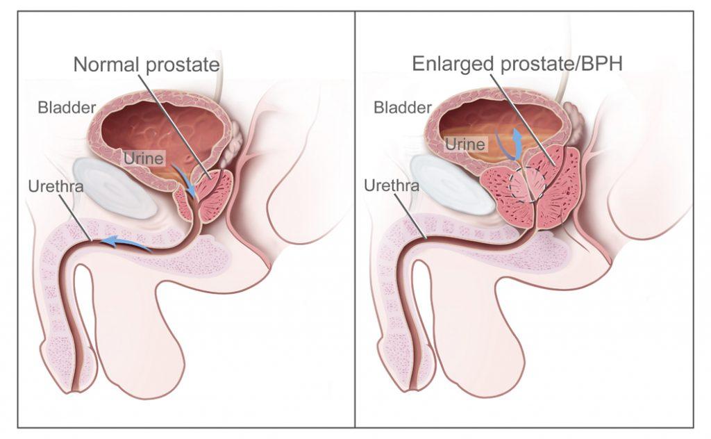 cancer de prostata jovem