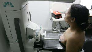 Mulher faz exame de mamografia