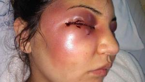 Christini Cardoso de França foi agredida pelo marido, Fábio Tuffy Felippe, em 21 de dezembro, no Rio de Janeiro