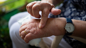 mãos artrite