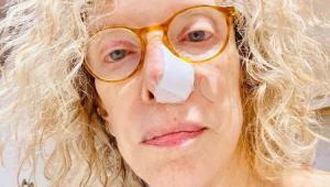 Marília Gabriela com um curativo no nariz