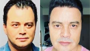 Antes e depois do cantor Renner