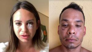 Médico diz que está com 'emocional destruído' após briga em resort na Bahia; grupo acusa empresário de agressões