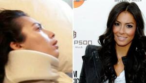 Atriz recebe indenização milionária após sofrer dano cerebral causado pela alergia à amendoim