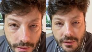 Danilo Gentili com os olhos inchados