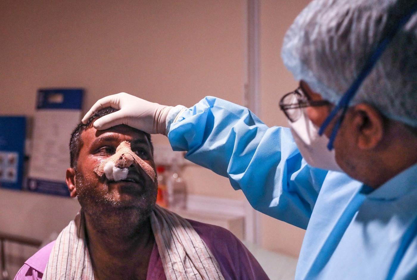 Profissional da saúde olha para paciente contaminado pelo fungo negro