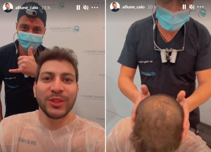 Caio Afiune faz transplante de cabelo