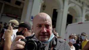 Fotógrafo com olhos sangrando após