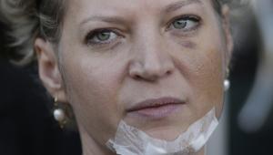 Joice Hasselmann concede entrevista sobre atentado sofrido