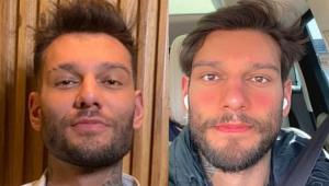 Lucas Lucco antes e depois da reversão da harmonização facial