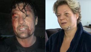 Ricardo Macchi, o Cigano Igor, surge 'machucado' e faz piada com caso Joice Hasselmann