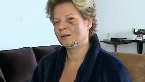 Joice Hasselmann fala com curativos no queixo, olhos roxos e roupão azul escuro com sofá e parede branca ao fundo