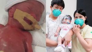 montagem com duas fotos de bebê recém-nascido