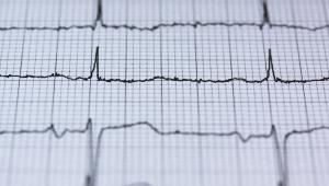 Linhas de um eletrocardiograma